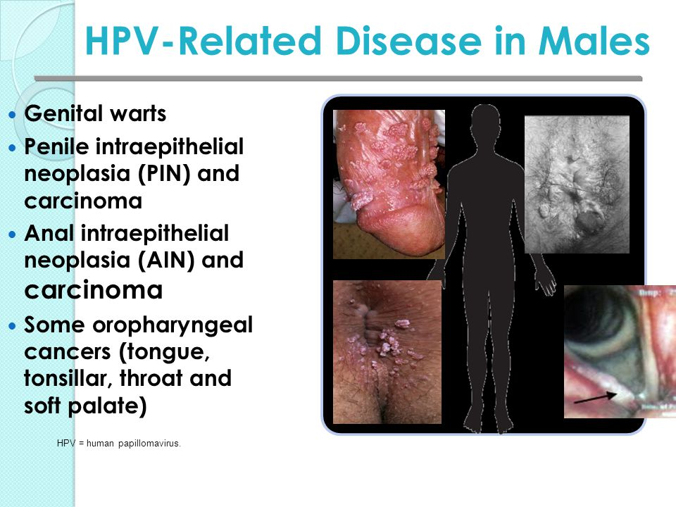 hpv warts and penile cancer)
