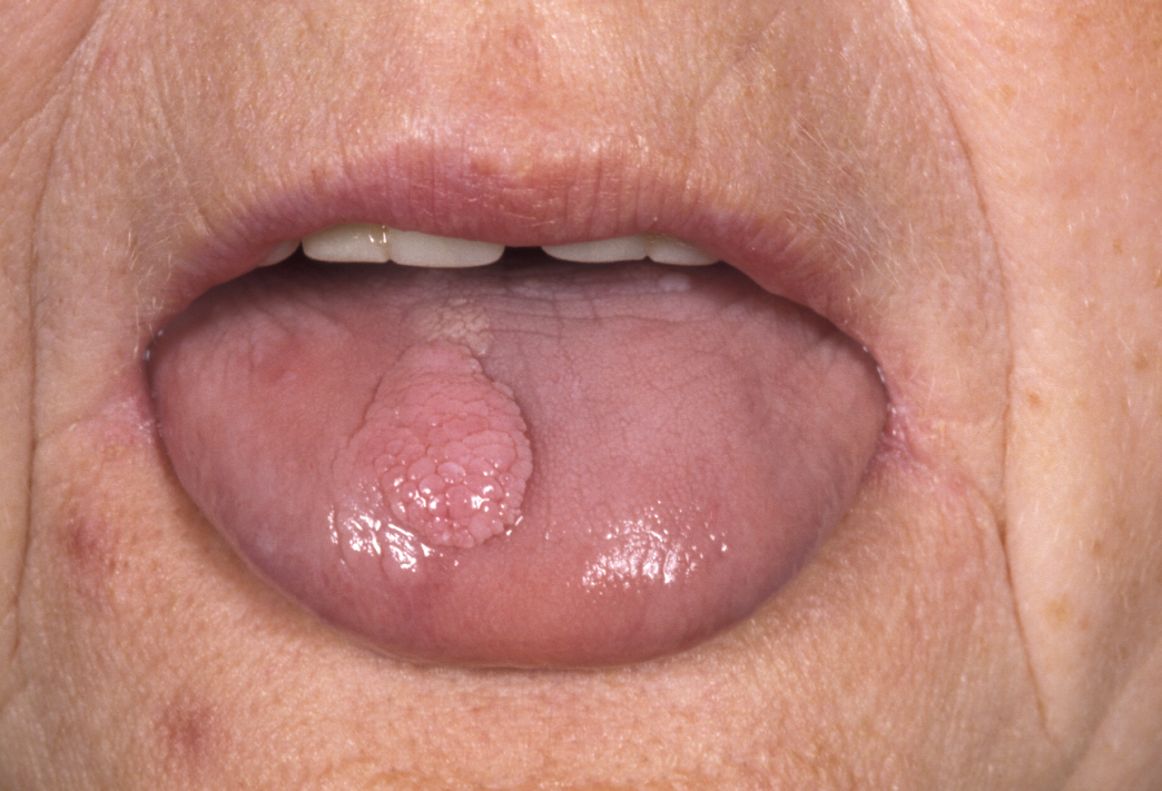 papilloma lump in mouth)