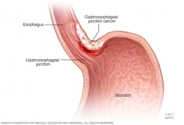Bronhoscopia – cand este necesara aceasta analiza? - Cancer