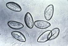 enterobius vermicularis wirt)