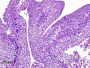 Papilloma of bladder histology, Sabina Zurac