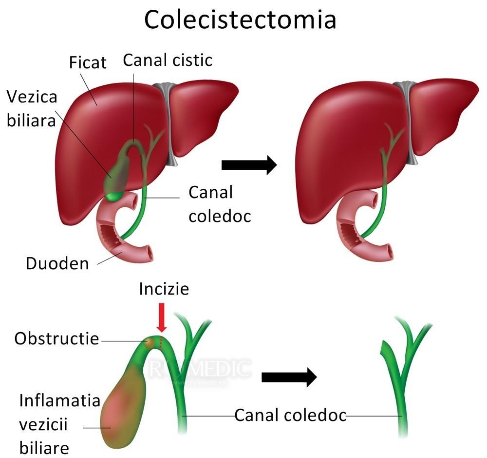 simptomele cancerului caecumului)