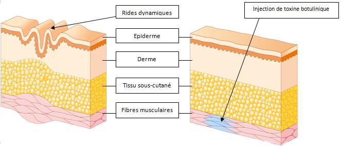 toxine botulique 4)