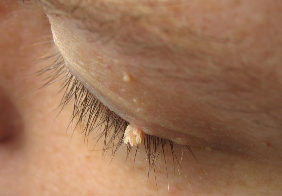 nasal warts removal)