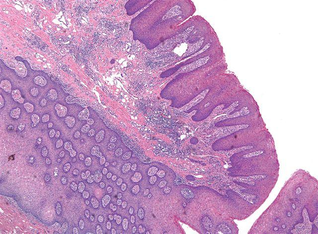 papilloma of tongue histopathology)