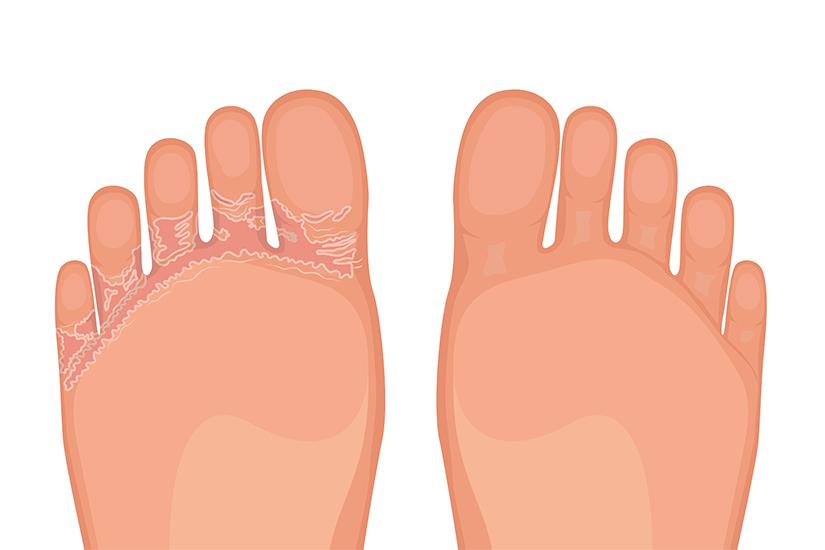 cum se tratează micoza între degete