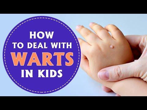 Wart virus toddler