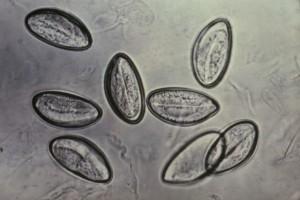 enterobius vermicularis objawy)