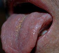 Enterobiasis kepek