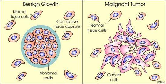 cancerul este malign sau benign condiloame la moxibustie la femei