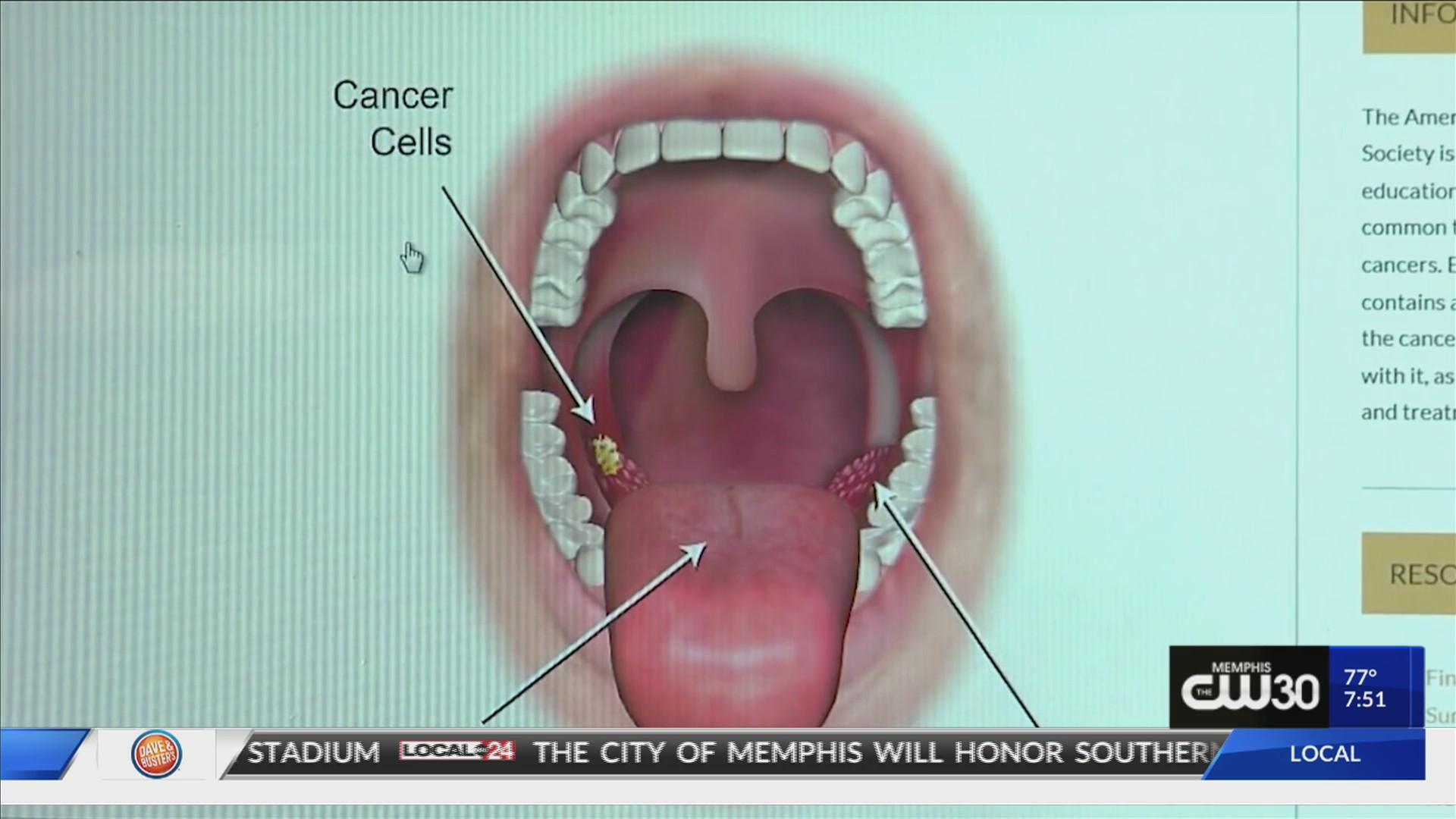 Giardia gatto incubazione. Egészségünkre: Tudnivalók a HPV-ről cancer biology benign tumors