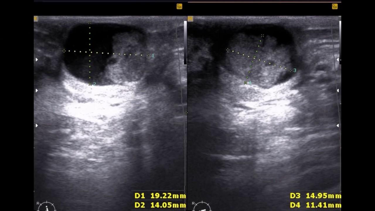 papiloma intraductal diagnostico