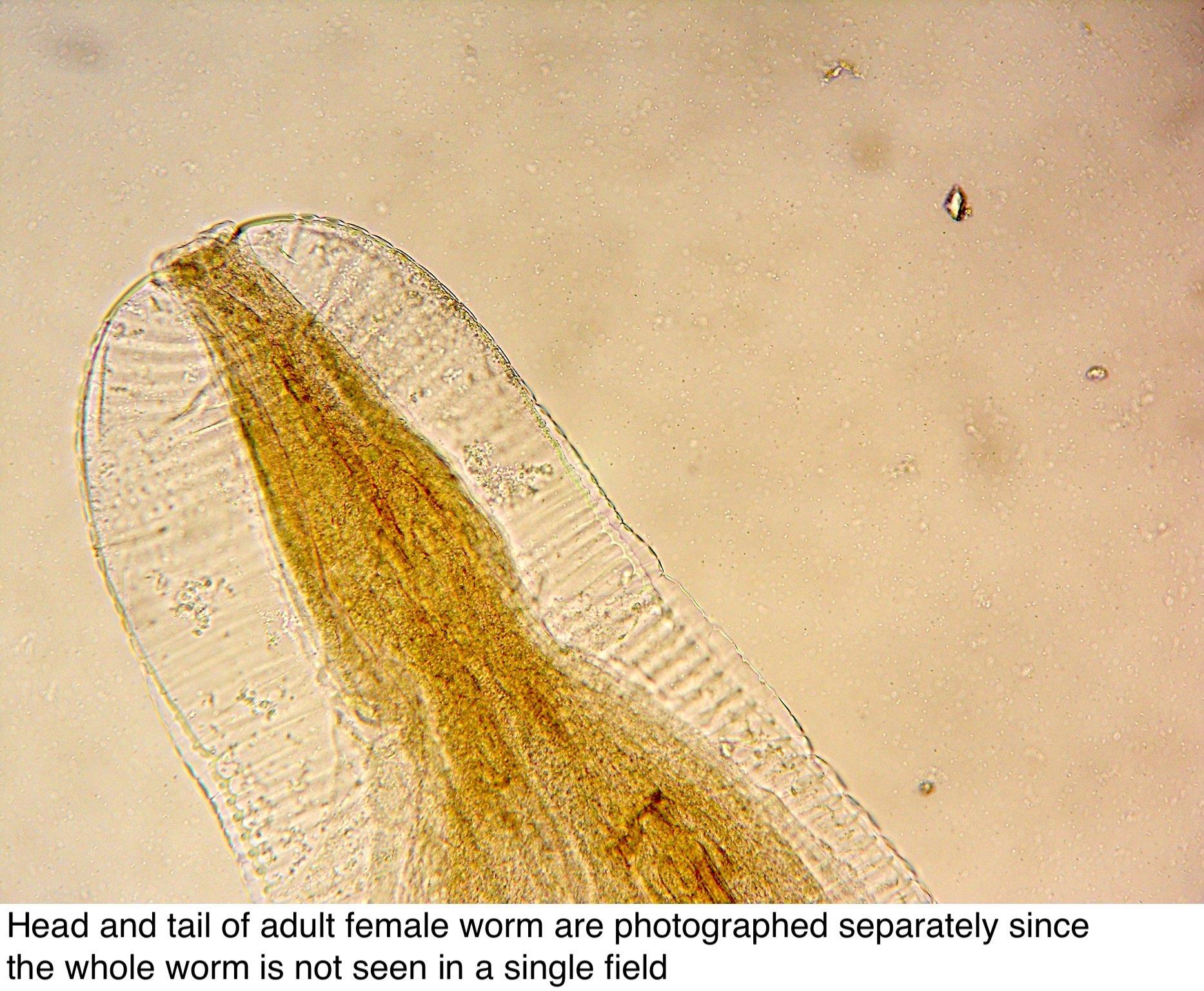 enterobius vermicularis worms
