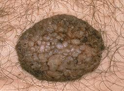 Papiloma humano herpes labial - info-tecuci.ro - Papiloma labial sintomas