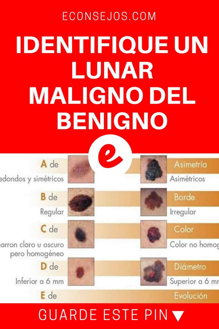 papilloma benigno o maligno)