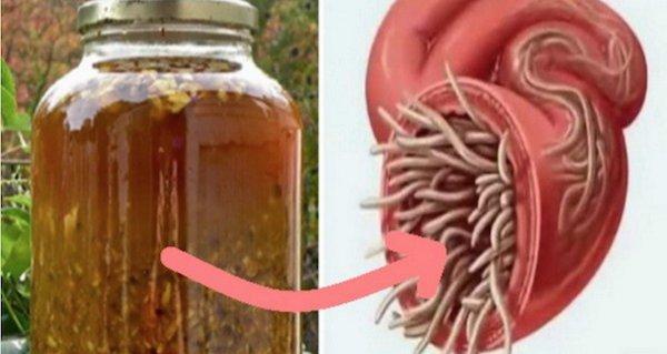 remediu pentru toți paraziții din organism)