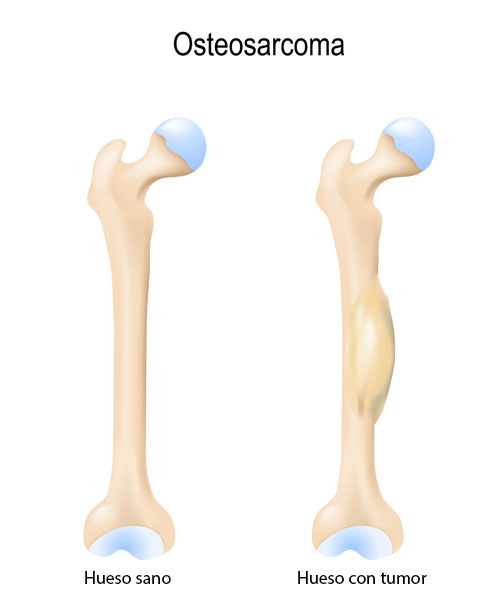 Que es cancer de huesos