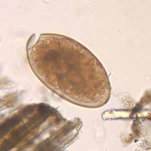paraziti schistosom)