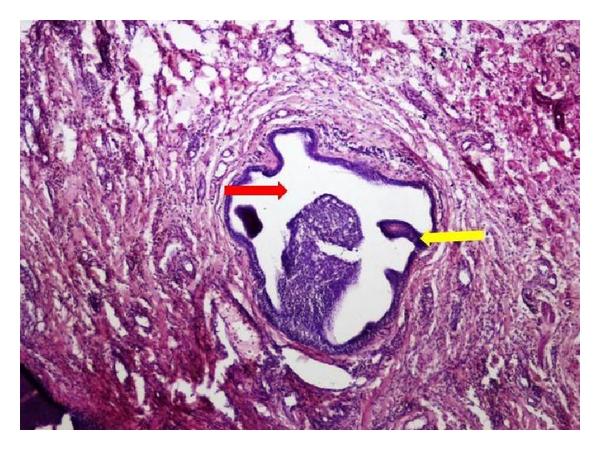 Papilloma nasal vestibule. Squamous papilloma nasal vestibule