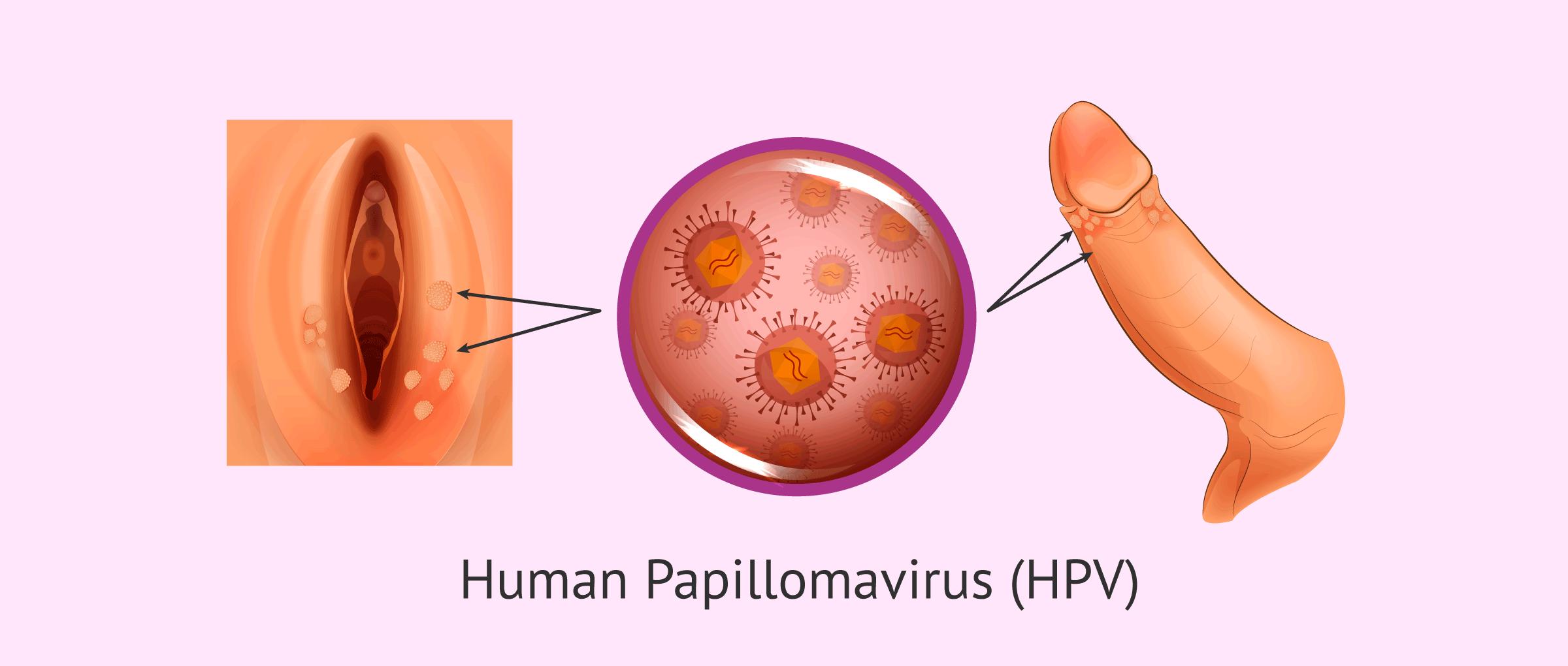 what does human papillomavirus cause