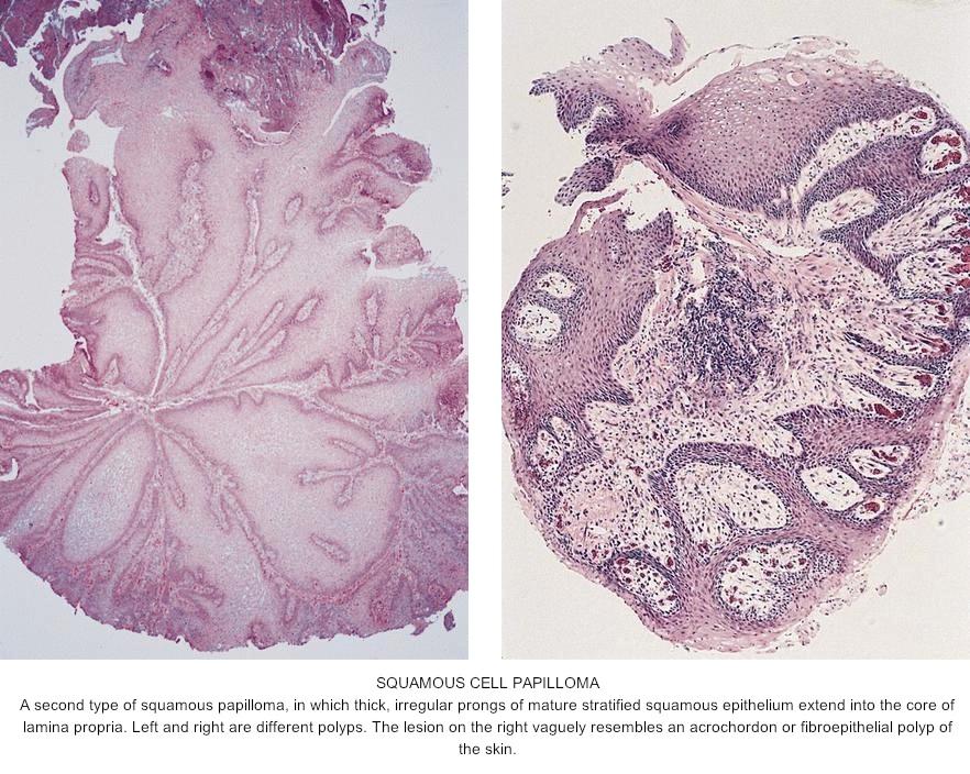 esophagus squamous papilloma hpv)