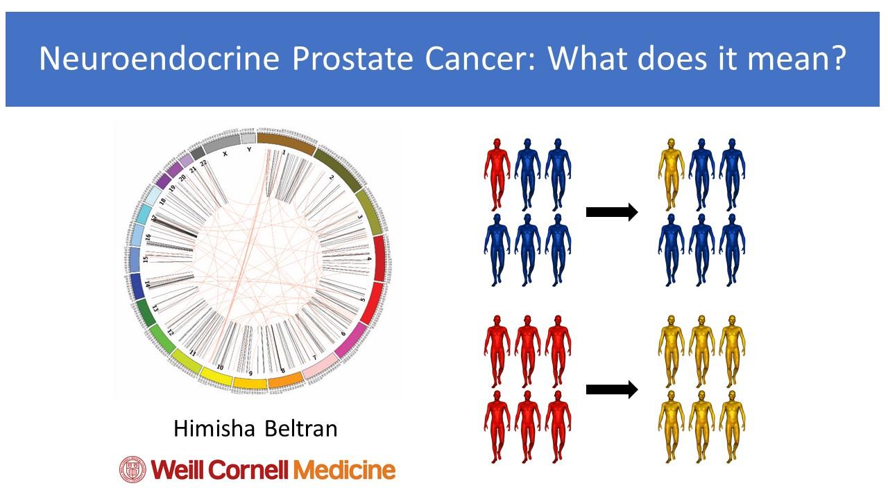neuroendocrine cancer of prostate)