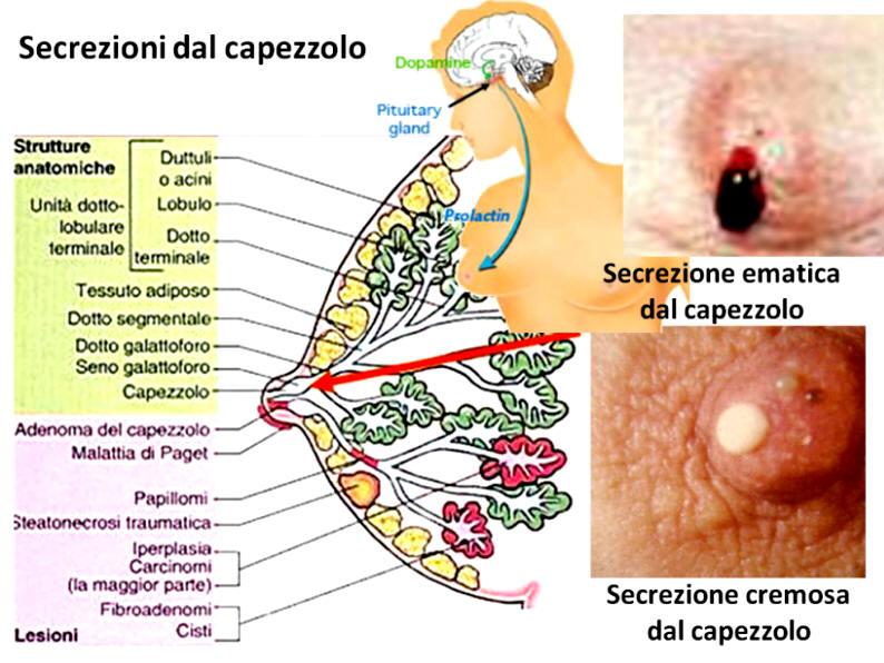 papilloma duttale cause da dove proviene slăbire medicament cu viermi