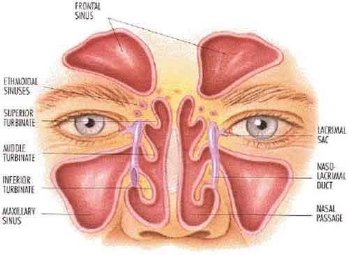 papilloma invertito naso sinusale sintomi