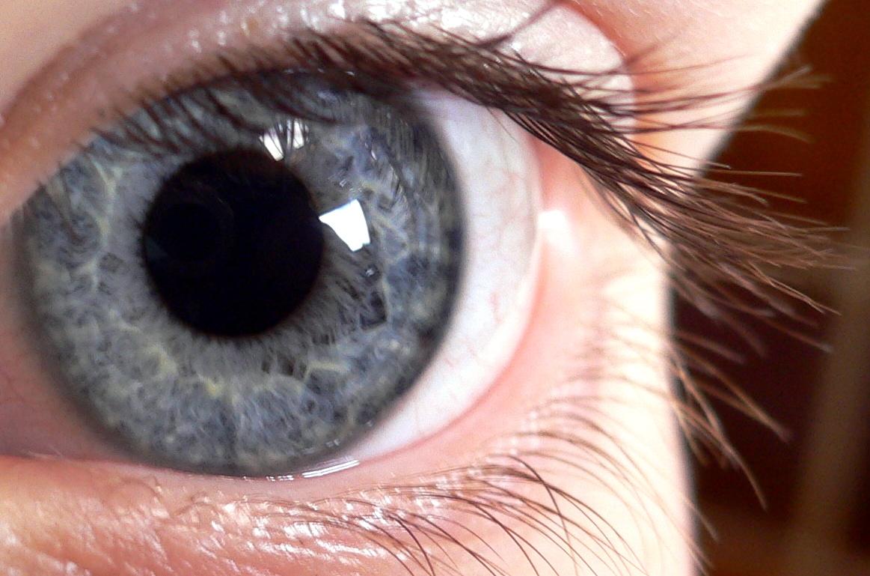Papilome pe pleoape și ochi. Cum să le eliminați? - Negii Papilom pe mucoasa pleoapei