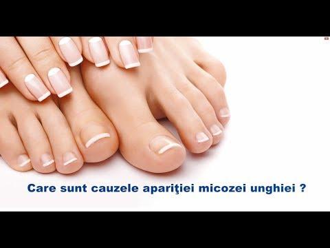 cauzele infecției cu viermi)