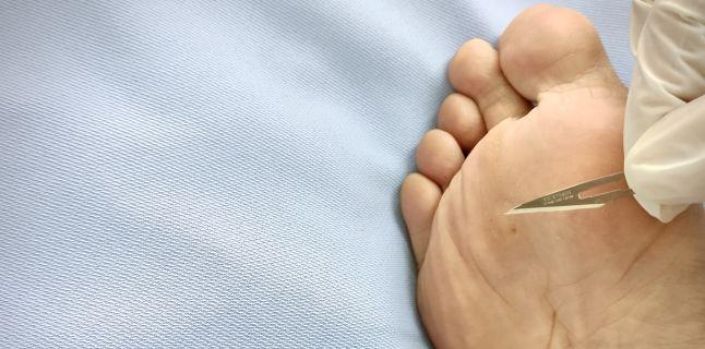 recidiva verucii plantare după forul de eliminare ist hpv virus ansteckend