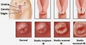 pot exista condiloame pe uter