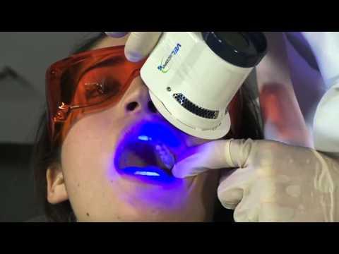 papiloma gluteus adalah
