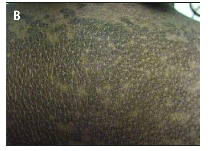 confluent and reticulated papillomatosis pcos ce cauzează papiloame