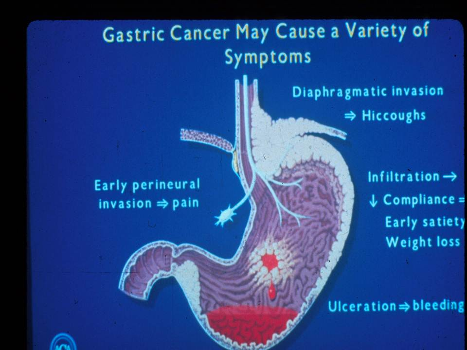 abdominal cancer tumours)
