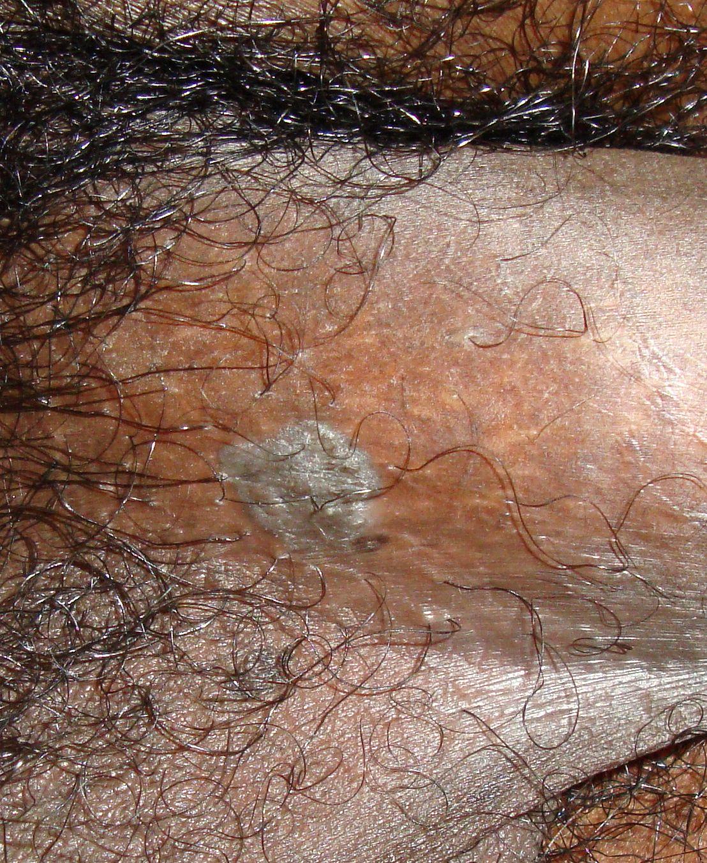 condylomata acuminata in male)