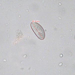 enterobius vermicularis zoonosis un leac pentru viermi împotriva cancerului