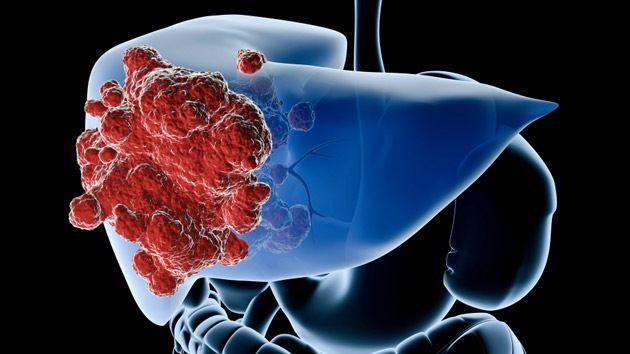 cancer neuroendocrino higado