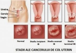 condiloame ale colului uterin în timpul nașterii)