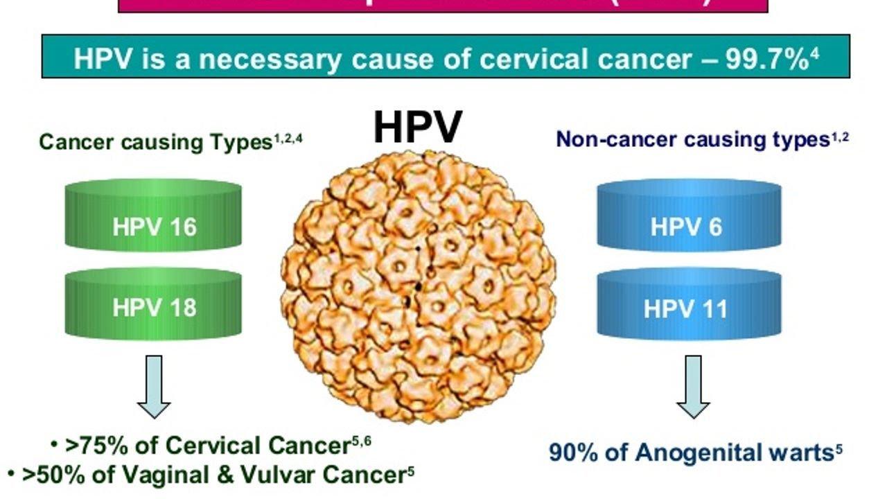 Is hpv genital warts cancer. Hpv genital warts test