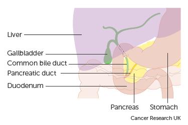 metastatic cancer gallbladder)