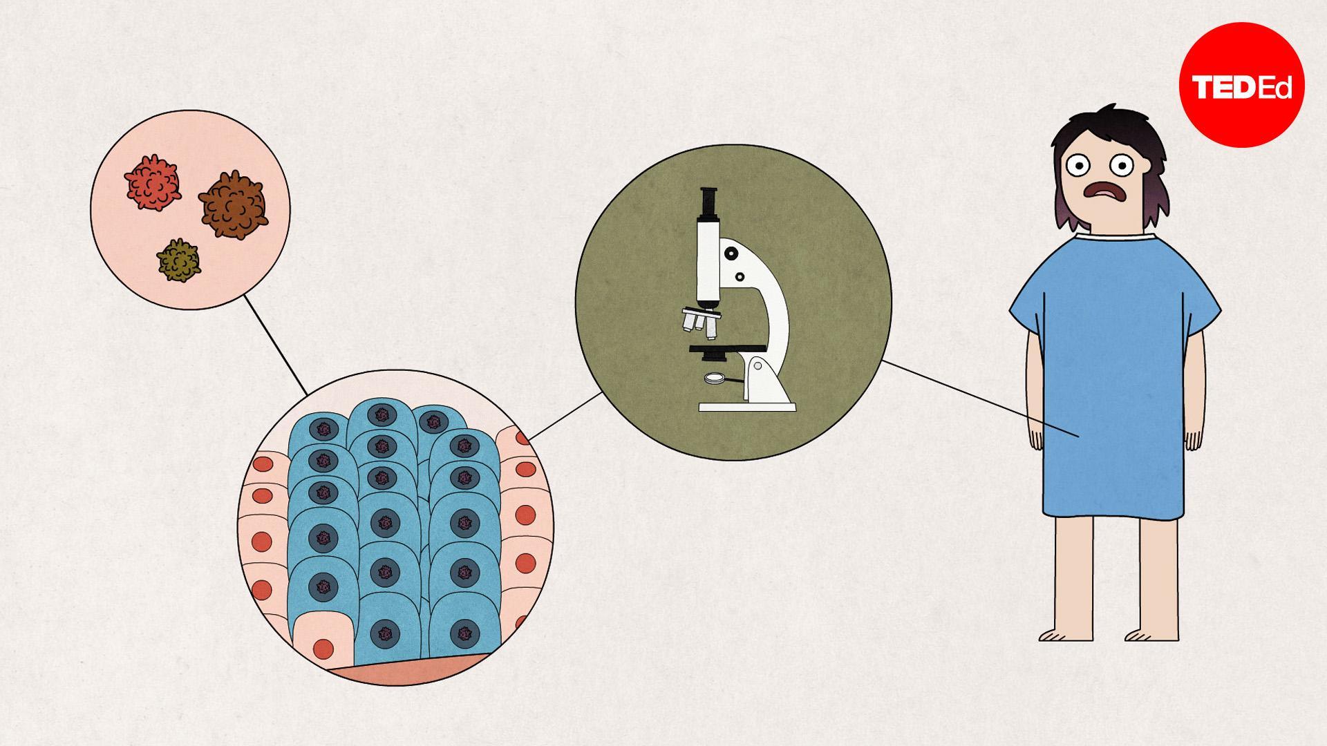 il papilloma virus rimane a vita