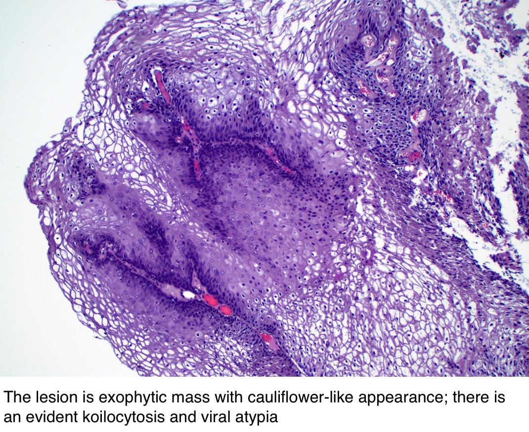 condyloma acuminatum pathology outlines