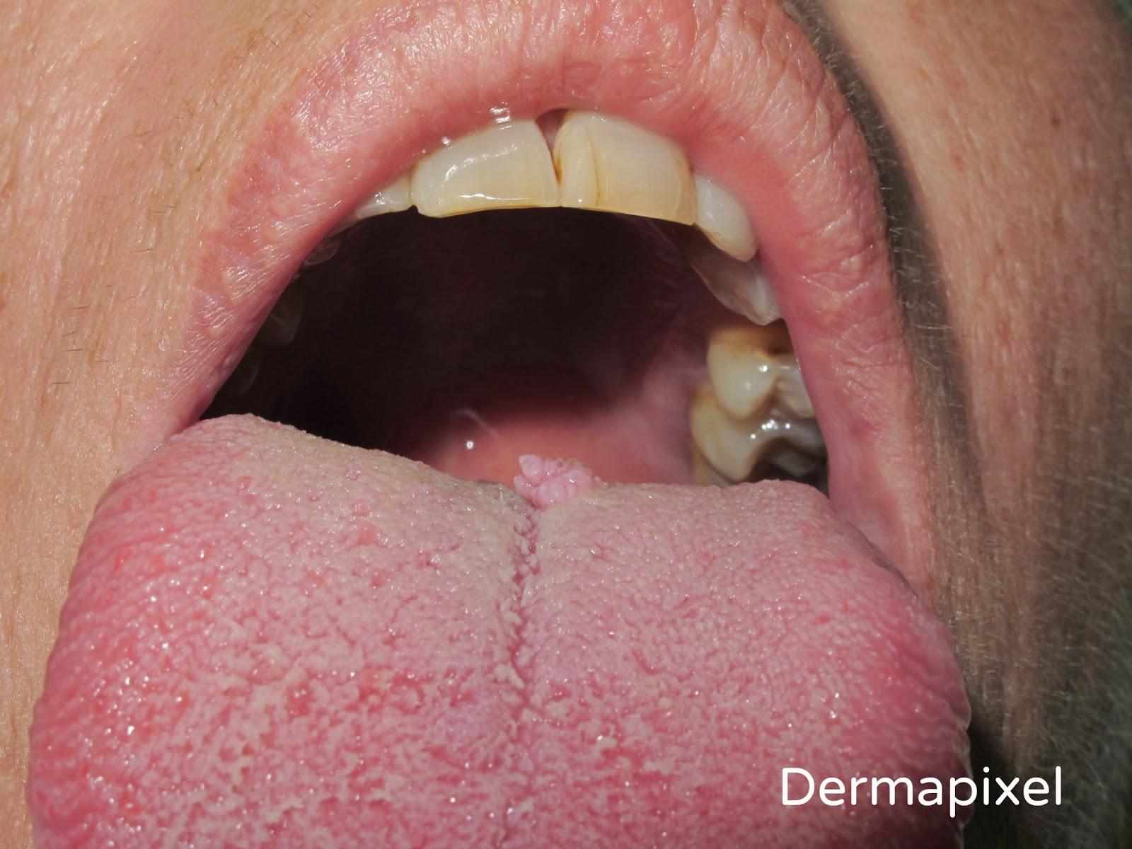 papiloma en la boca lengua