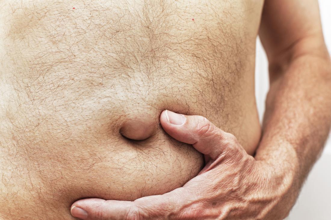 Ovarian cancer abdominal lump
