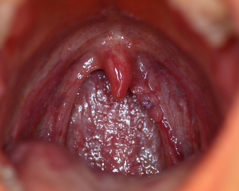 human papillomavirus discharge