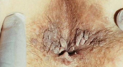 Sarcina si bolile cu transmitere sexuala (ITS/BTS)