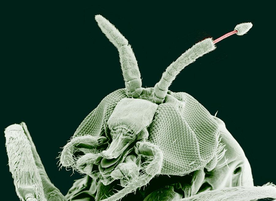 parazit de organism