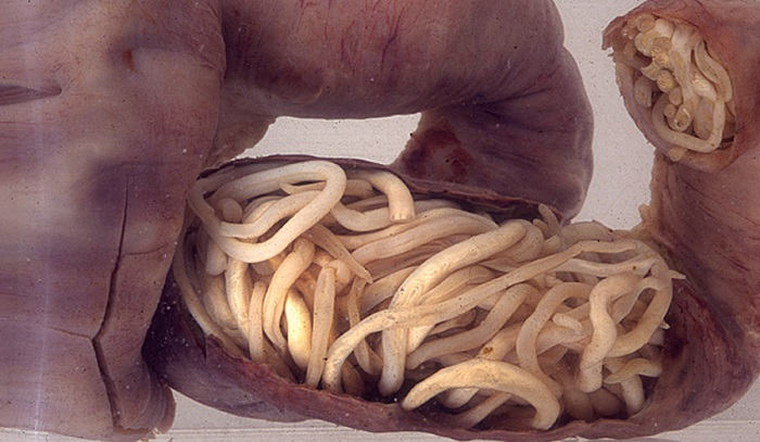 Crevni paraziti kod ljudi simptomi. Helminti Enterobius