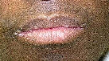 hpv lesion on lip